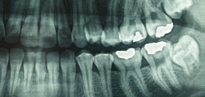 radiologie dentara 1